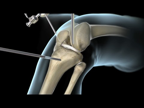 Knee Surgery Torn Acl Nucleus Health Youtube