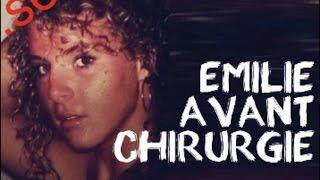 EMILIE FIORELLI (SECRET STORY 9)  - AVANT CHIRURGIE