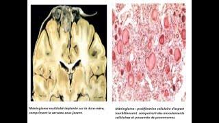 ANATOMI PATHOLOGIQUE Tumeurs Non Epithéliales
