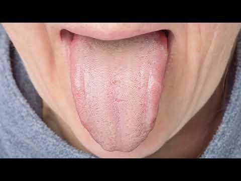 Как избавиться от белого налета на языке после приема антибиотиков у взрослого