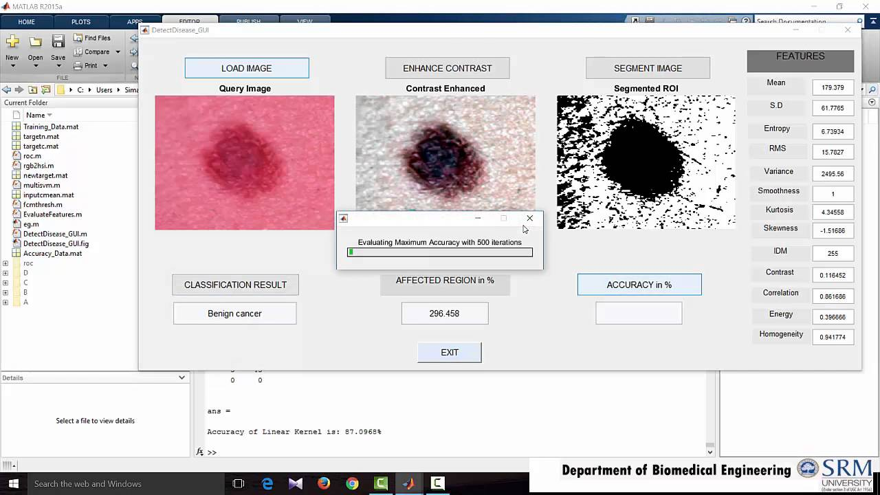 Classification Of Skin Disease Using Multiclass SVM Classifier in MATLAB