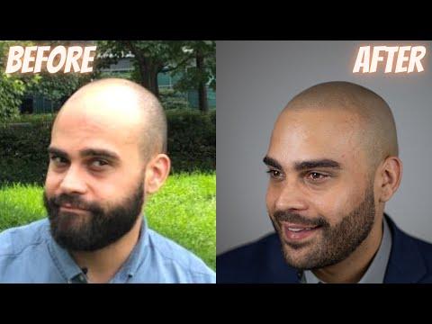 MIND-BLOWING Scalp Micropigmentation Result