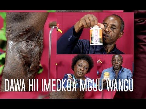 Dawa Hii Imeokoa Mguu Wangu Uliokuwa Ukatwe Hospitalin..