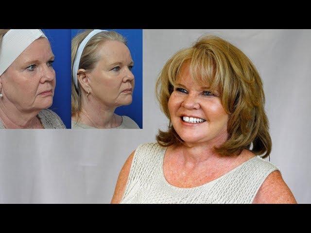 Carla's Transformation Story