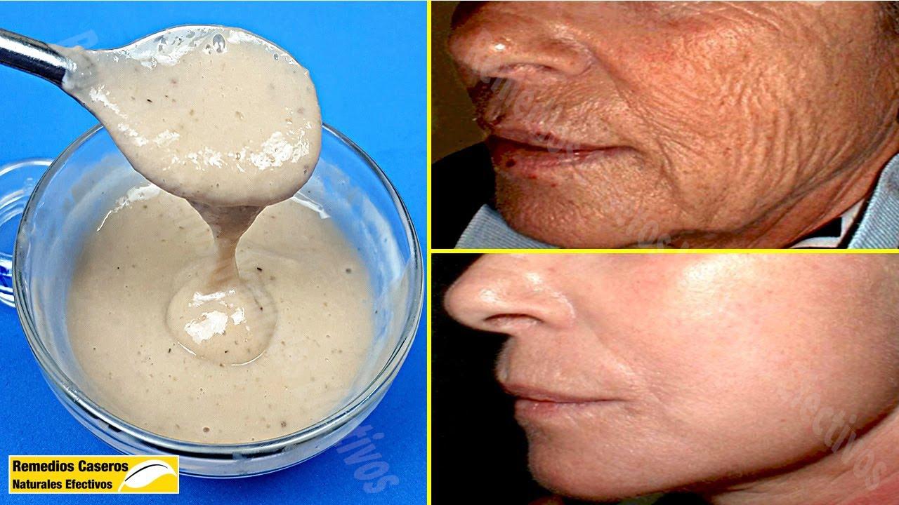 Sólo Usa Esta Mascarilla - Eliminar Las Arrugas De La Cara Rápidamente Y Hacer Que La Piel Sea Lisa