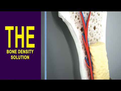 The Bone Density Solution Reviews – UPDATED – By  Shelly Manning – PDF BOOK – Osteoporosis Treatment