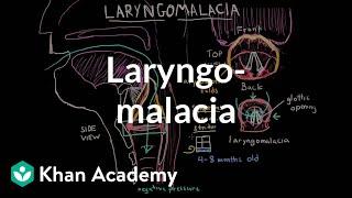 Laryngomalacia | Respiratory system diseases | NCLEX-RN | Khan Academy