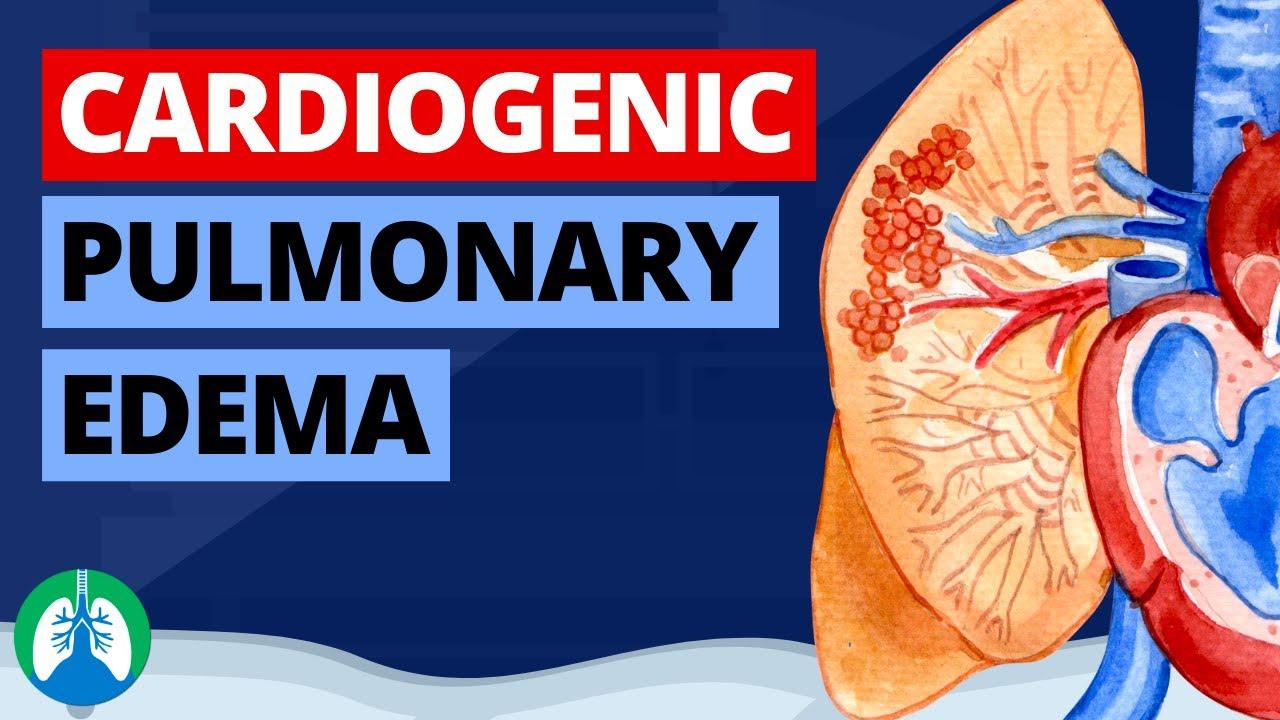 Cardiogenic Pulmonary Edema (Medical Definition)   Quick Explainer Video
