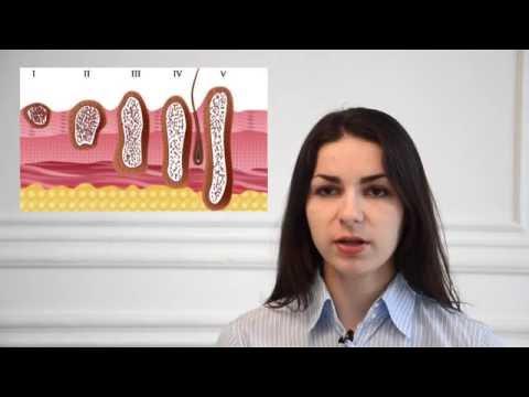Современные методы лечения меланомы