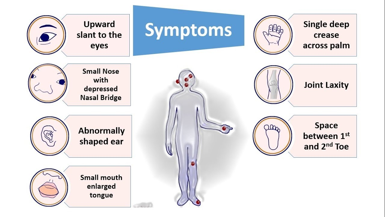 an analysis of cause diagnosis and proper treatment on down syndrome There is no simple diagnostic test for piriformis syndrome causing irritation of the sciatic nerve the condition is primarily diagnosed on the basis of the patient's symptoms and on a physical exam, and after excluding other possible causes of the patient's pain.