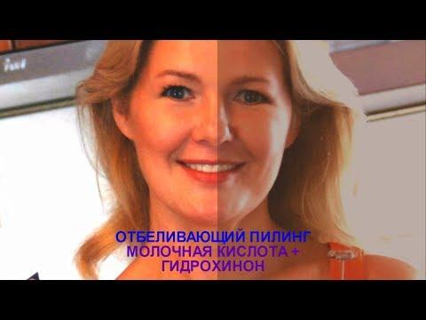 Крем отбеливающий Expigment с содержанием гидрохинона 4%