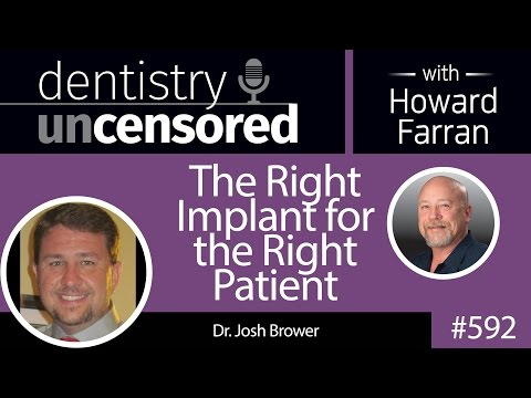 592 The Right Implant for the Right Patient with Josh Brower : Dentistry Uncensored