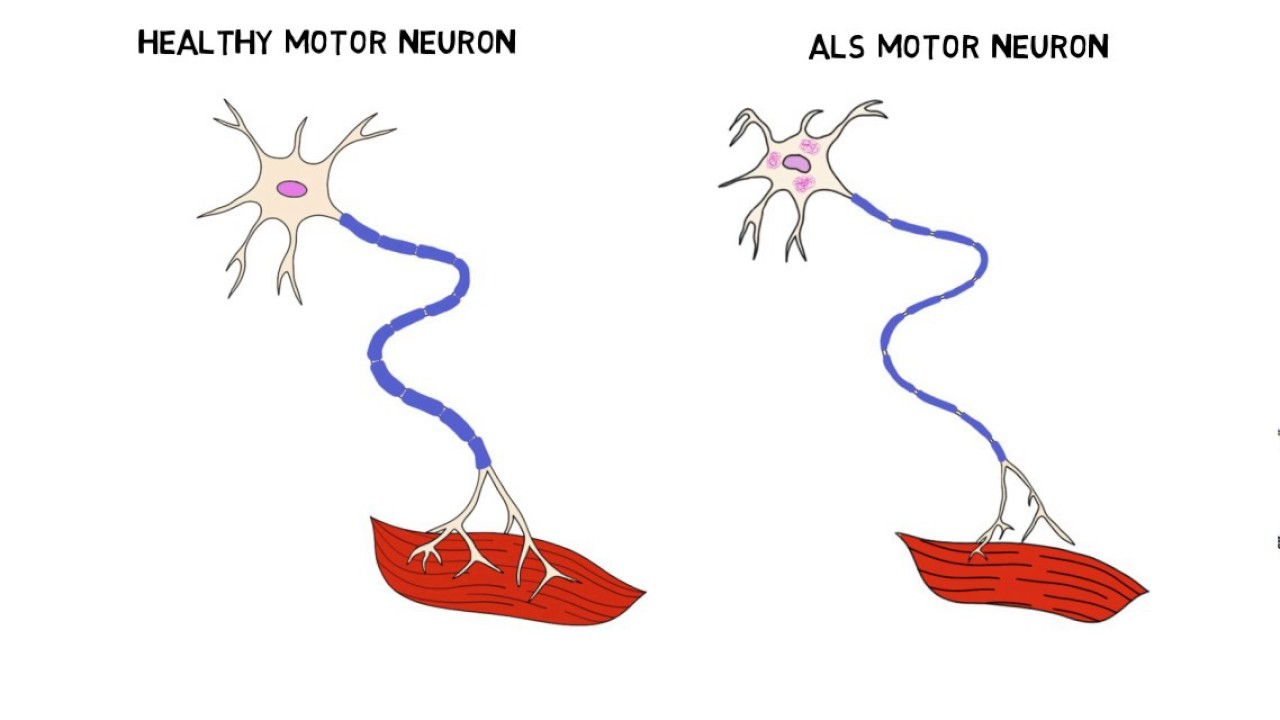 Image result for als