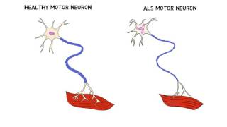 2-Minute Neuroscience: Amyotrophic Lateral Sclerosis (ALS)