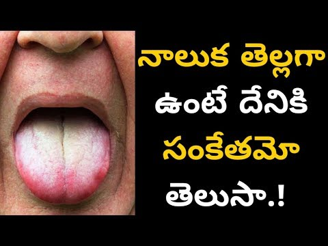నాలుక తెల్లగా ఉంటే దేనికి సంకేతమో తెలుసా.! || How to clean tongue natural in Telugu