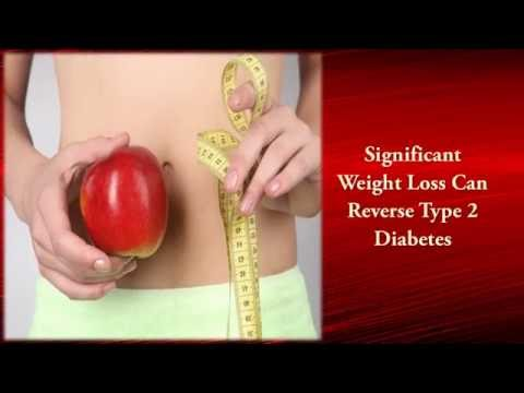 Healthy Diet for Type 2 Diabetes Management