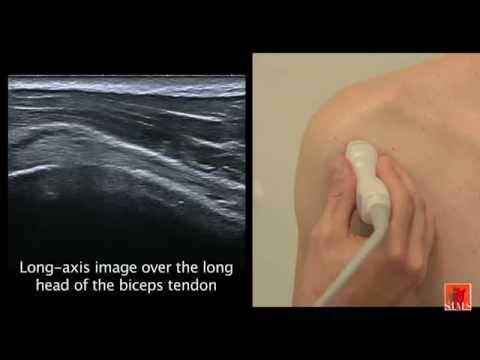 ultrasound of the shoulder I