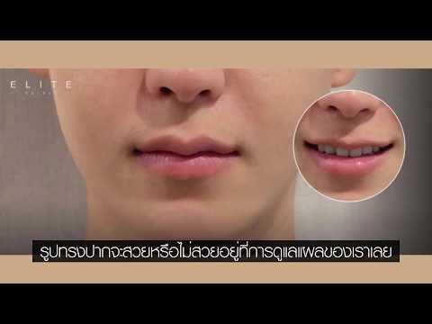 อยากทำปากบาง ปากกระจับ ริมฝีปากแบบไหน ควรทำศัลยกรรมปาก วิธีดูแลหลังทำปาก