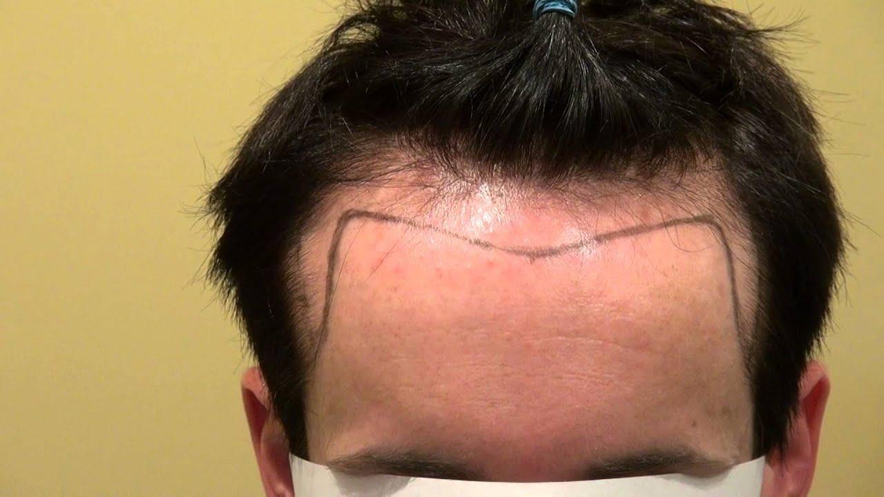 Receding Hairline Hair Transplant Bald Man Bay Area Dr