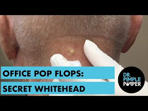 A Nice Whitehead on the Neck: OFFICE POP FLOP