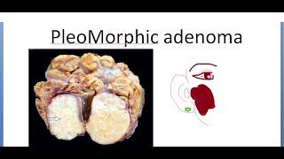 pleomorf adenoma kezelése