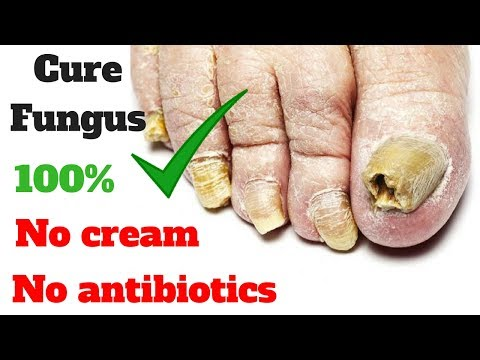 How to treatment toe and nail fungus, No cream, no antibiotics – clickbank review