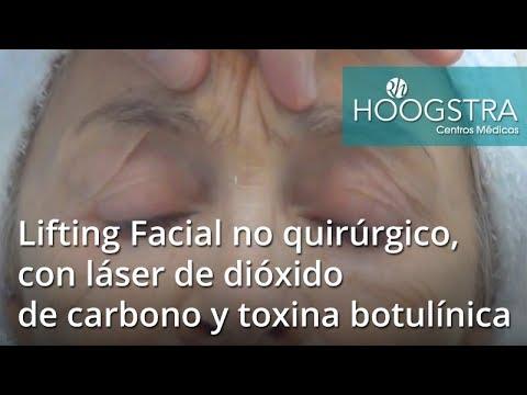 Lifting Facial no quirúrgico, con láser de dióxido de carbono y Botox (14045)