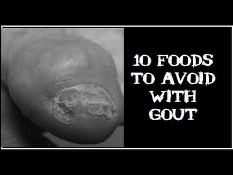 foods that elevate uric acid levels could i have gout in my big toe gouty arthritis rheumatoid arthritis