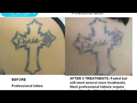 Laser Tattoo Removal Before and After Photos - YouTube