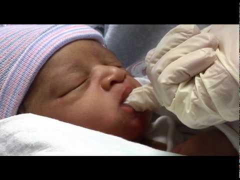 Tongue-Tied: Helping Babies Breastfeed