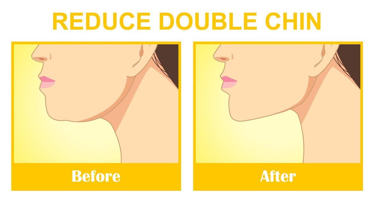wemon-exercises-to-reduce-facial-wrinkles-girl-pics-teen