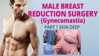 Part 1 Skin Deep Male Breast Reduction (Gynecomastia) Thumbnail