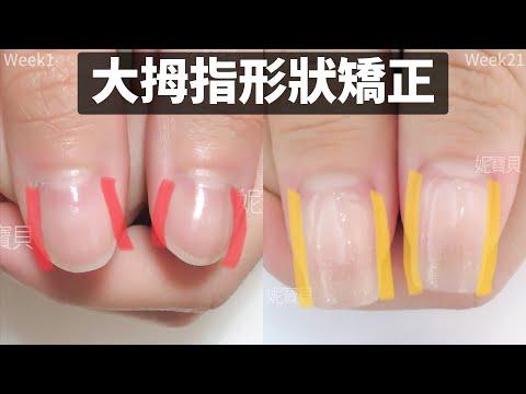 大拇指形狀調整|新竹他店客戶指甲矯形|健康指甲變更漂亮的案例