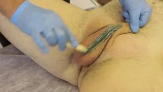 Step by Step Male Brazilian and Male Hollywood style Waxing Full Length Demonstration