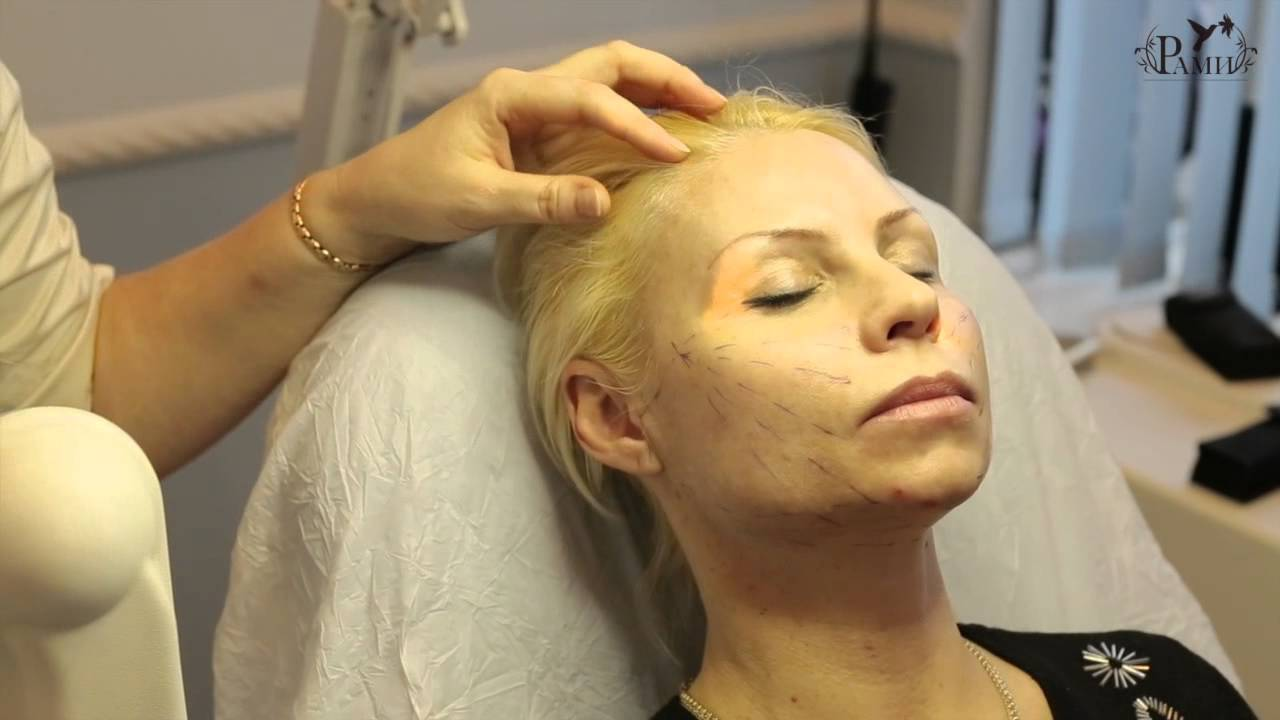 Золотые нити для лица - что это такое, как проходит процедура, как ... | 720x1280