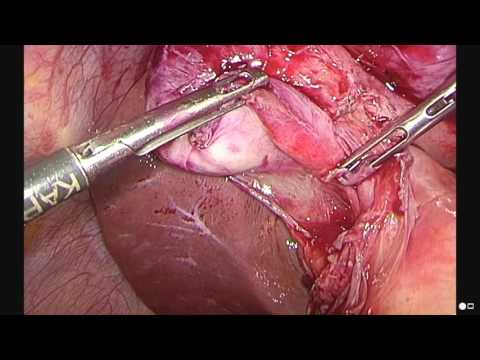difficult gallbladder surgery