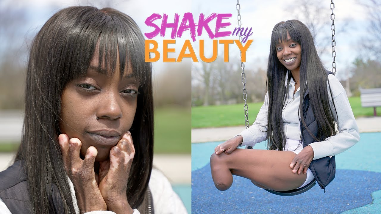 I Lost My Legs And Fingers To Sepsis - But Now I'm A Model | SHAKE MY BEAUTY