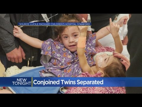 Conjoined Sacramento Twins Survive Marathon Separation Surgery