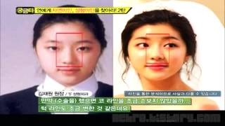 Gangnam Style TOP Plastic Surgery,  Best Before and After - South KOREA SEOUL