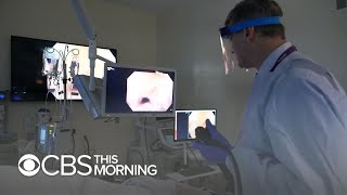 How AI could help doctors identify hard-to-spot colon polyps