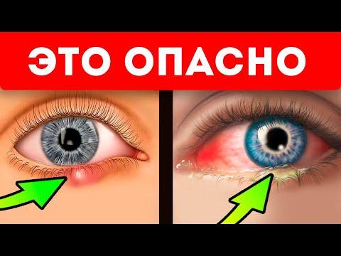 Глаза укажут! 21 неявный признак болезней по глазам и векам!