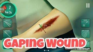 Suturing Surgery #Gaping Wound