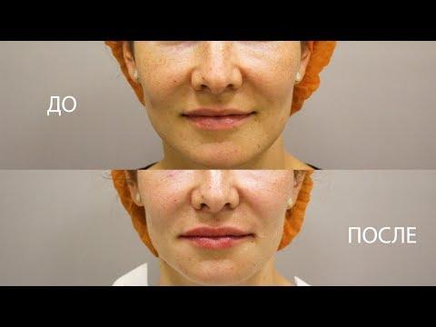 Биоревитализация (увлажнение) губ