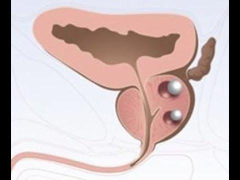 Λιθίαση προστάτη, prostatic calculi