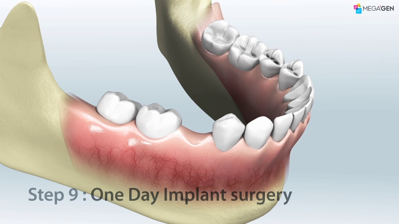 R2GATE One Day Implant concept video