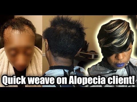 HOW TO QUICK WEAVE ON A CLIENT WITH ALOPECIA- No Audio