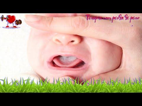Saúde -  Tratamento Caseiro Para Sapinho Na Boca Do Bebê - Tua Saúde