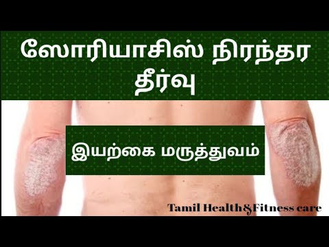 psoriasis home treatment in tamil