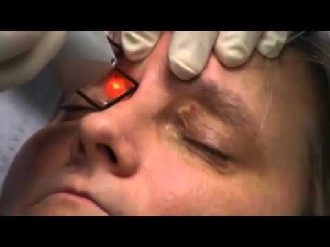 Xanthelasma NYC - (212) 644-6454 -Xanthelasma Laser Treatment NYC- New York, NY