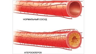 Холестерин  Надо ли статины